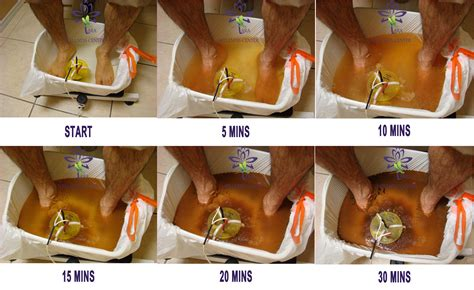 detoxing threw the feet for cancer picture 11