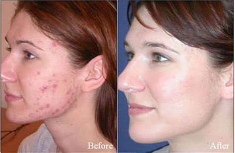 how long does it take tazorac to work for acne picture 7