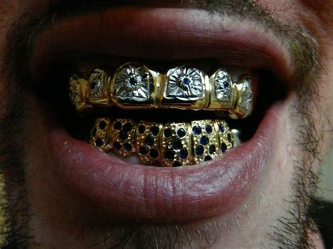 blue teeth grill picture 7