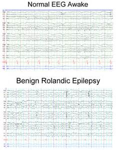 partial seizures in sleep picture 7