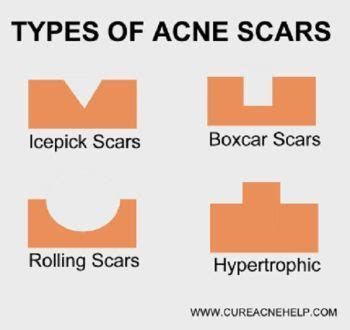 treatment of acne and acne scars by hakeem picture 15
