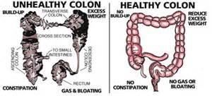 colon problems and symptoms picture 1