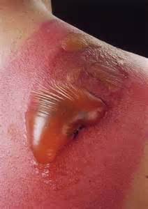 staph infection from water warts picture 1