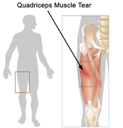 cold or heat on a pulled muscle picture 8