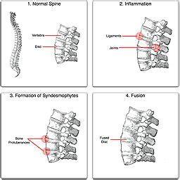 Ankylosing spondylitis prostate picture 3