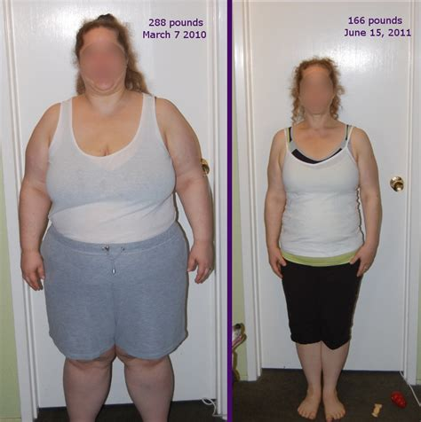 average weight loss after a tummy tuck and picture 8