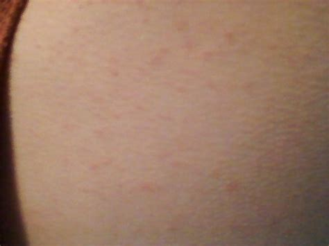 rash that looks like acne picture 6
