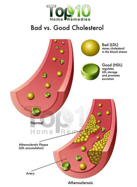 what is perfect cholesterol picture 13