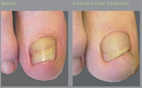 nail laser treatment toenail fungus in georgia picture 3