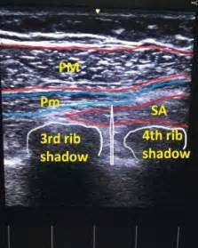 chest muscle pain picture 9