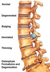 muscle relaxant herniated disc picture 6