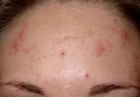 acne forehead digestion picture 5