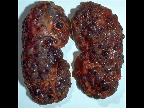 breast cancer liver failure picture 6