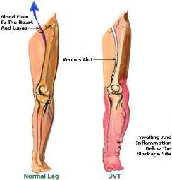 leg pain muscle twitching picture 1