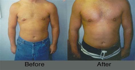 male breast enlargement picture 9