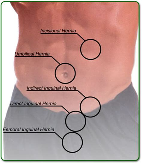 chinese medecine to treat hiatal hernia picture 9