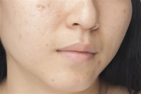 does masterbation cause acne picture 1