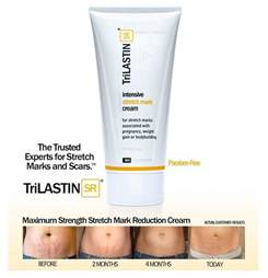 mobella stretch mark cream picture 3