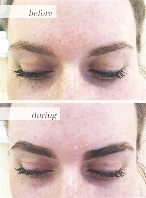 does vaseline darken skin picture 9