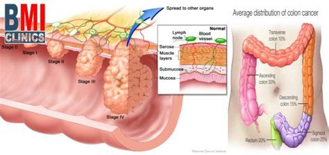 advanced colon cancer picture 9