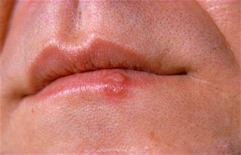 herpes cold sore contagious picture 6