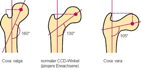 coxa vulga of hip joint picture 10