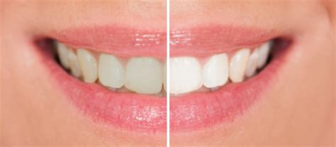 columbia teeth whitening picture 1