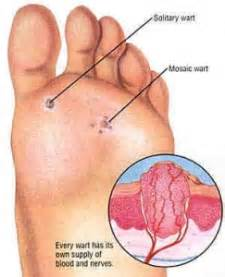 can plantar warts spread to genital picture 7