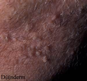 filiform wart picture 5