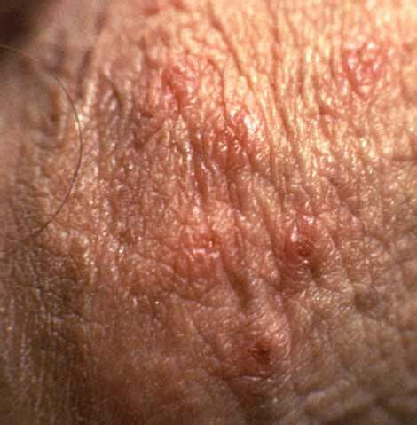 herpes breakout picture 2