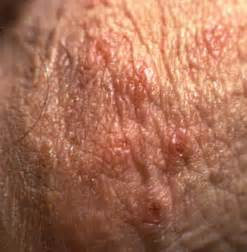 herpes on a man picture 15