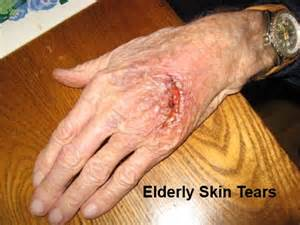 elderly skin picture 2