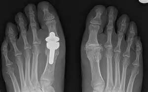 degenerative joint disease picture 9