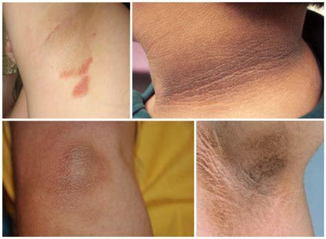 dark skin on elbows picture 6