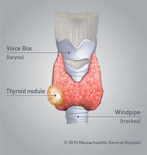 natural shrinkage of thyroid nodule picture 2