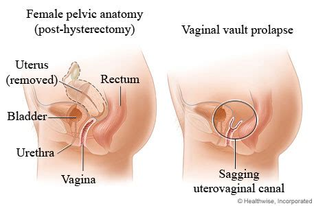 vaginal prolapse - pictures picture 2