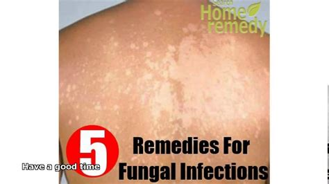 remedy for yeast infection picture 17