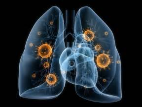bacterial infection in lungs picture 3
