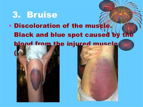 Muscle dieases picture 6