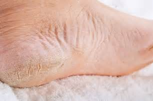 feet skin picture 11