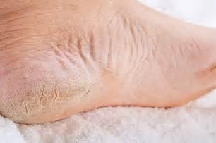 dry heel skin picture 11
