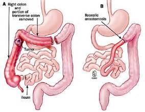 stages of colon cancer picture 3