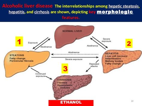 catalase in alcoholic liver cirrhosis picture 9