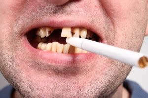 laser stop smoking treatments picture 2