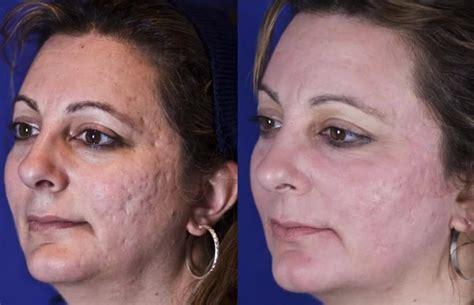 vitamin b5 and acne picture 2