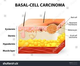 sebal cell skin cancer picture 15