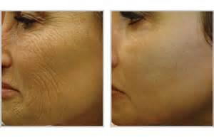 medspa skin definition inc. picture 1