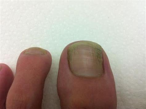 fingernail fungus picture 5