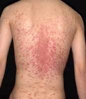 poison skin rashes picture 7