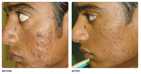 co2 laser treatment for acne scars picture 2